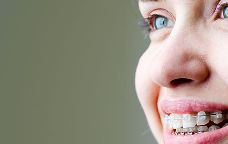 Eerste Hulp bij Orthodontie
